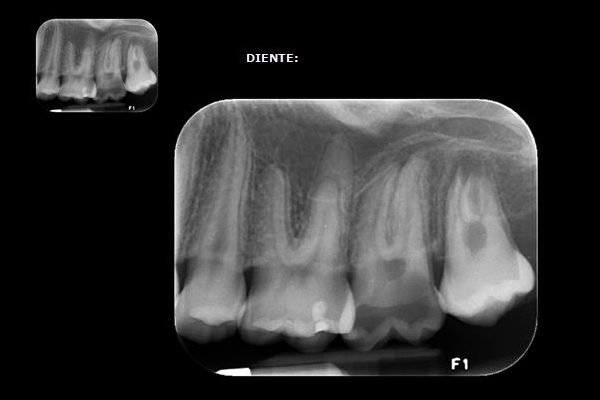 Radiografía periapical: